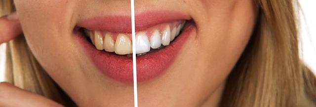 Blanqueador dental casero inmediato con aceite de coco