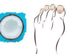 aceite de coco para las uñas de los pies